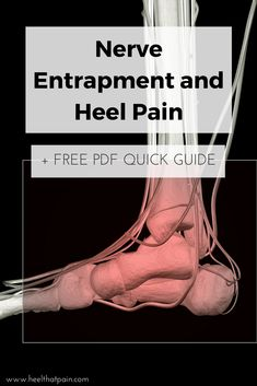 If your plantar fasciitis isn't healing, it may actually be a nerve entrapment. Click to learn the signs and symptoms, and get our free nerve pain quick guide.