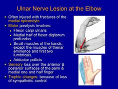 Image result for ulnar nerve palsy