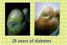 This lady has diabetes, high blood n cholesterol for 28years. She needs to take medication for nearly 20 tablets each day. When her toe had a hole and the doctor said she needed to amputate her toe, her son told her to start taking the R2. After 2 months her toe started to heal and she also became more energetic. She can now go to the town whereas in the past she used to lie on the sofa whole day. Thx to R2!