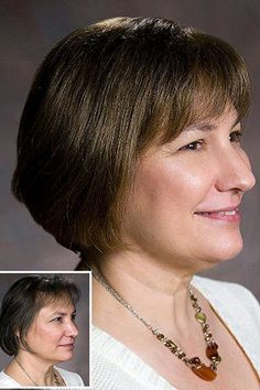 Hair pieces for thinning hair are very often a popular option for women.  They are non-surgical and can provide a very realistic and natural looking result.