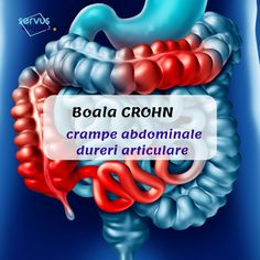 Sănătate - Servus Expert Crohns, Good To Know, Health, Loosing Weight, Health Care, Healthy, Salud