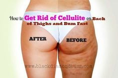 How to Get Rid of Cellulite on Back of Thighs and Bums Fast