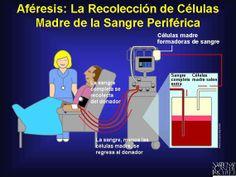 Aféresis: Este proceso involucra la remoción de sangre completa del donador. A medida que se extrae la sangre del donador, las células madre circulantes (y algunas veces células inmunes maduras) se extraen. Una máquina tipo centrífuga entonces separa los componentes. La sangre misma, menos las células madre, se regresa al donador. La aféresis no requiere anestesia pero puede tomar varias horas.