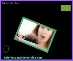 Tegretol Hair Loss 173301 - Hair Loss Cure!