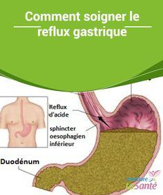 Comment #soigner le reflux gastrique Le reflux #gastrique est le passage du contenu gastrique vers l'œsophage depuis #l'estomac, Ce mal peut apparaître suite à de mauvaises #habitudes #alimentaires