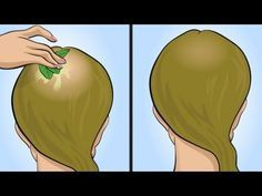 Solo poche persone conoscono questo rimedio naturale per la perdita dei capelli. E' veramente efficace!
