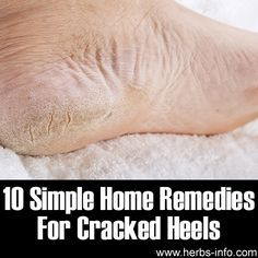 10 Simple Home Remedies For Cracked Heels   >  Don't let your body get so bad. Take care of your feet better with these hints...