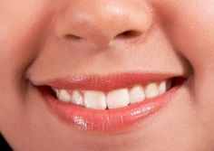 Happy Smile With White Teeth
