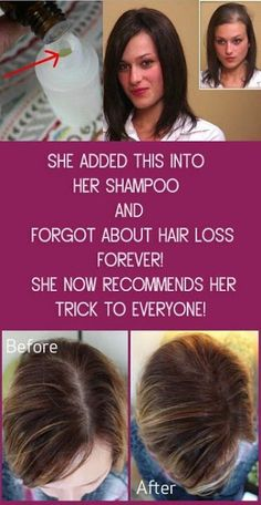 She Added This into Her SHAMPOO and Forgot About Hair Loss FOREVER! She Now Recommends Her Trick To Everyone! Essential oils have become pretty common nowadays, with people fully realizing their tr… Diy Shampoo, Homemade Shampoo, Hair Loss Shampoo, Shampoo For Fine Hair, Hair Loss Remedies, Thinning Hair Remedies, Hair Thickening Remedies, Prevent Hair Loss, Hair Regrowth