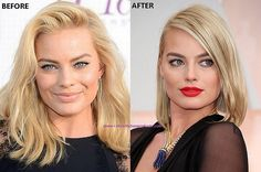 Know about the plastic surgery in detail - Plastic Surgery Before and After