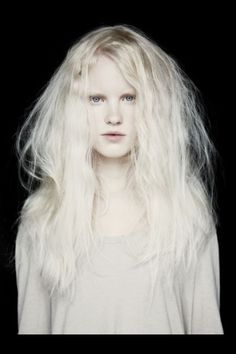 With hair albino black people blonde