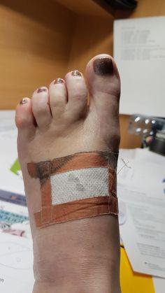 Bei Knieproblemen kann eine gesetzte Diode unterstützen Glee, Nice Asses