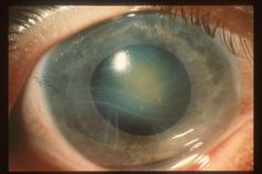 Glaucoma intaoccular Hypertension ungefähr= 20 mm Hg Glaukoma Patienten > 20 mm Hg intraoccular Druck(pressure),andre Name Augen tension (other name Eye tension)