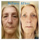 TRANSFORMATION THURSDAY.... Wow I can see why Cheryl is In  with her 60 day results! She is literally aging backwards!  Cheryl used! 1. Redefine Regimen  2. Amp Roller 3. Multi-function eye cream 4. Micro-dermabrasion paste  Message me TODAY l so I can help you get younger looking skin!!!!  #Redefine #Agingbackwards #legacybyheather