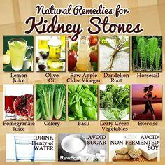 10 Prevent Kidney Stones Ideas Kidney Stones Kidney Stones Remedy Kidney Health