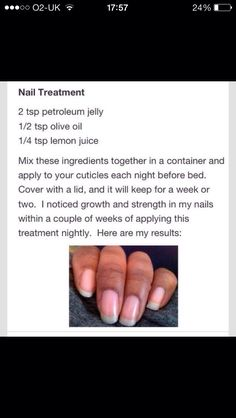 nail growth tips how to grow nail growth tips _ nail growth _ nail growth tips faster _ nail growth diy _ nail growth tips how to grow _ nail growth treatment _ nail growth serum _ nail growth tips remedies Nail Growth Tips, Nail Care Tips, Fast Nail Growth, Beauty Care, Beauty Skin, Beauty Hacks, Beauty Ideas, Diy Beauty, Beauty Buy