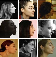 Big Nose Girl, Big Nose Beauty, Hooked Nose, Face Angles, Dark Eye Circles, Face Profile, Freckle Face, Big Noses, Best Portraits
