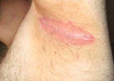 16 Best Armpit Lump Images Armpit Lump Armpits Lump Under Armpit