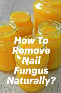 Simple Video Presentation about how to remove nail fungus naturally Natural Health Remedies, Natural Cures, Natural Healing, Herbal Remedies, Health Diet, Health And Wellness, Health Fitness, Natural Medicine, Herbal Medicine