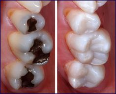 Tooth-colored composite resins are one of the alternatives to traditional silver amalgam fillings which offer superior aesthetics due to their capacity to be closely matched to surrounding teeth.  #dentalfillings #dentist #dental #dentistry #dentaltown #CosmeticDentistry