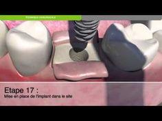 Biotech Dental :Protocole chirurgical de pose d'un implant dentaire KONT...