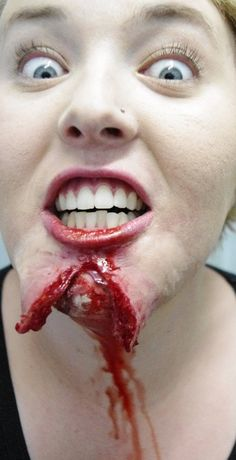 Chin ripped open- Always wear a seatbelt! Cut or Wounded people or creatures - Special Effects Makeup and prosthetics #sfx #sfxmakeup specialfx www.unwoundfx.com #unwoundfx