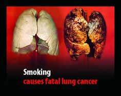 Smoking is bad for smokers lungs Harmful Effects Of Smoking, Smoking Causes, Smoking Is Bad, Help Quit Smoking, Smoking Kills, Smoking Lungs, Smoking Weed, Lung Cancer Symptoms, Lung Cancer Awareness