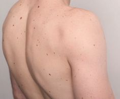 Sveinn has moles all over his body