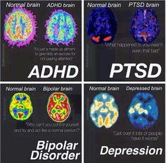 Normal , depression, ADHD, ptsd, and bipolar disorder brain differences. Stress Disorders, Mental Disorders, Bipolar Disorder, Pseudo Science, Brain Science, Life Science, Forensic Science, Computer Science, Adhd Brain