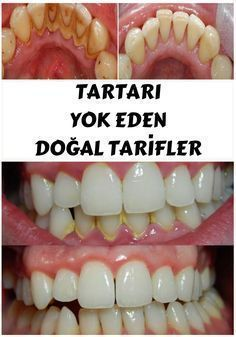 Removing tartar usually required a visit to your dentist, but by applying one of these natural remedies you will be able to remove it yourself in the privacy of your home. Dental Health, Oral Health, Health And Wellness, Health Fitness, Dental Care, Natural Home Remedies, Natural Healing, Teeth Care, Skin Care