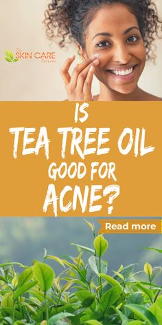 How can tea tree help with acne breakouts and scars? Discover more about tea tree as a natural acne treatment at theskincarereviews.com #teatreeoil #bestteatree #teatreeacne #teatreeskin Natural Acne Treatment, Natural Skin Care, Best Acne Products, Skin Products, Best Tea Tree Oil, Tea Tree For Acne, Acne Mask, Clear Skin Tips, Skin Care Cream