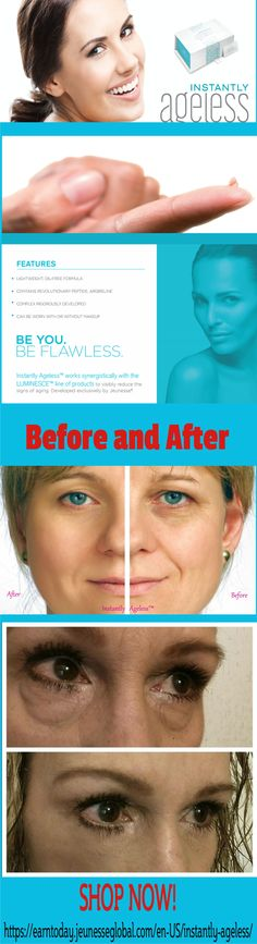 Before and After Photos Instantly Ageless by Under Eye Bags, Anti Aging Treatments, Body Systems, Anti Wrinkle, Skin Care Tips, Photos, Click Photo, Beauty Stuff, 10 Years