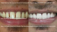 Any adult having teeth with gaps, crooked teeth, over sized, small teeth, dark teeth, protruding or fractured teeth is a candidate for smile makeovr by the chief doctor Dr Trivikram (Dr Vikram),an expert cosmetic dentist in Bangalore.teeth can be corrected without any braces/clips in 7-10 days. ALLSMILES - located only at - N0.64, SHANKAR MUTT MAIN ROAD BASAVANAGUDI.(no other branches). BANGALORE-560004.KARNATAKA. INDIA. E-MAIL- allsmilesdc@hotmail.com PH +91-0- 98450 85230.080-26673439.
