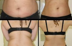 Body Wrap Resultaat na 1 wrap Easy Weight Loss, Healthy Weight Loss, Reduce Weight, How To Lose Weight Fast, Become A Distributor, Ultimate Body Applicator, Body Wraps, My Fb, Good Fats
