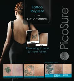 Are you within the 21% of adults with at least one tattoo that you regret?... Our new PicoSure laser can get rid of multi-colored tattoos, black tattoos, and previously treated tattoos, with just a FEW painless treatments.   Give us a call today, we'll be happy to answer your questions & invite you for a personal consultation: 212-688-JUVA