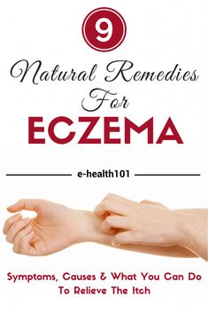 Eczema: Symptoms, Causes, And 9 Natural Remedies To Help Relieve The Itch - Just as the symptoms and causes of eczema are not going to be the same for everyone, there isn't going to be a one size fits all solution. Here are some of the tried and tested solutions. Try them on their own or combine them until you find what works best for you!