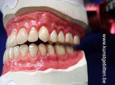 Een maquette voor boven en onderkaak tandprotheses
