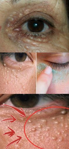 Como eliminar milium nos olhos - os melhores remédios caseiros #millium #bolinhanapele #bolinhanosolhos