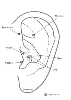 Smoking, microsystems, ear, acupuncture points by PBAcupunctureCPD, via Flickr