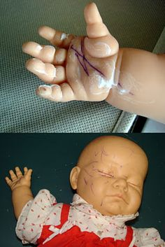 How to remove ink from baby dolls : 10% benzyl peroxide acne cream and sunlight can remove the ink stains without bleaching the doll's skintone or removing painted accents.
