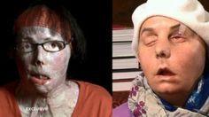 Carmen Blandin Tarleton on her face transplant