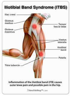 Iliotibial band syndrome causes pain near the knee and side of the hip.