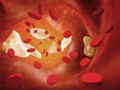 how to tell if there is blood in urine