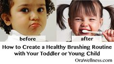 Let's face it. Getting our kids to brush their teeth can be a challenge. Even more, we know how important it is for the child's long term health to establish healthy oral hygiene habits. Is it best to just pin the toddler down and brush their teeth? What about just letting them do whatever…Read More