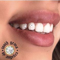 Crystal tooth gems.
