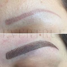 Yes we can rework old-style brow tattoos-- Microblading gives them new life! This by the talented @judy_lu_evertruesalon , who also specializes in clients with alopecia. Pls also see @jackie_lum_evertruesalon @anna_wong_evertruesalon @wendy_xu_evertruesalon @cathy_xu_evertruesalon @jenny_lei_evertruesalon and master therapist @michelle_x_wu #microblading #microbladingnyc #micropigmentation #semipermanentmakeup #permanentmakeup #BespokeBrow #browtattoo #browembroidery #browresurrection…