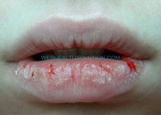 Natural Remedies For Severe Chapped Lips