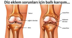 Difference between healthy knee joint & osteoarthritis. Learn more about osteoarthritis here. Ankle Surgery, Knee Osteoarthritis, Ankle Pain, Mother Earth News, Hip Pain, Knee Injury, Injury Prevention, Pain Relief, Natural Health