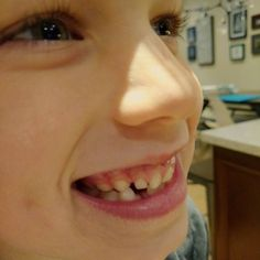The Tooth Fairy visited (twice!) this weekend. What's the going rate for a tooth in your house?