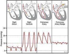 Heart Catheterization, Cardiac Catheterization, Cardiac Anatomy, Medical Anatomy, Cath Lab Nurse, Heart Pressure, Cardiac Sonography, Flight Paramedic, Critical Care Nursing